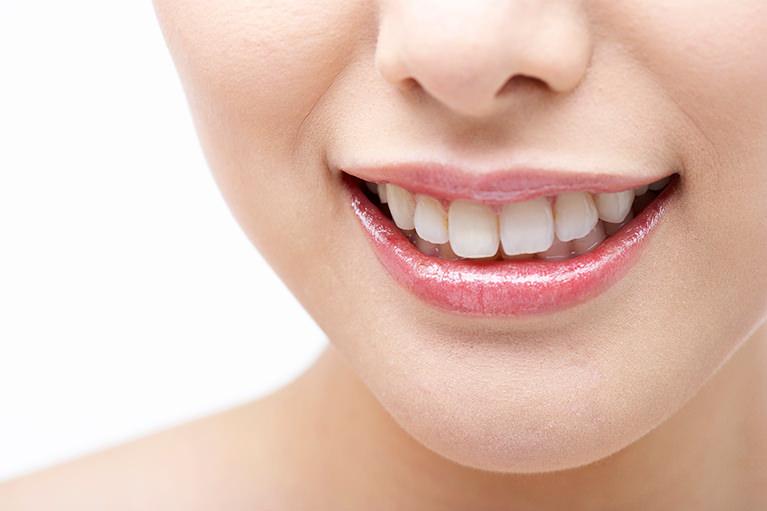 吉川歯科医院のホワイトニング